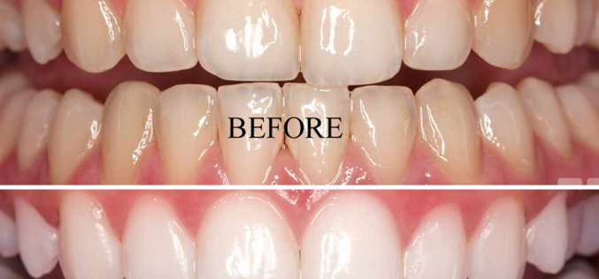 4 Benefits of Bleaching and Teeth Whitening