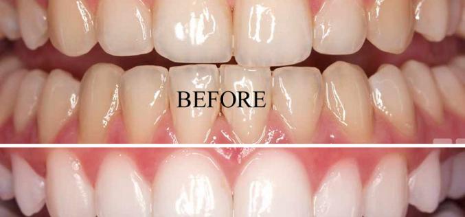 4 Benefits of Bleaching and Teeth Whitening