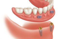 Best Dental implants services in Toronto