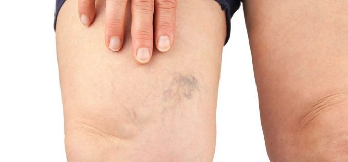 Types Of Varicose Veins You Should Know About