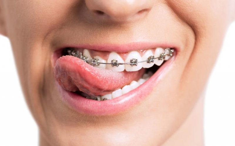 What Does An Orthodontist Do?