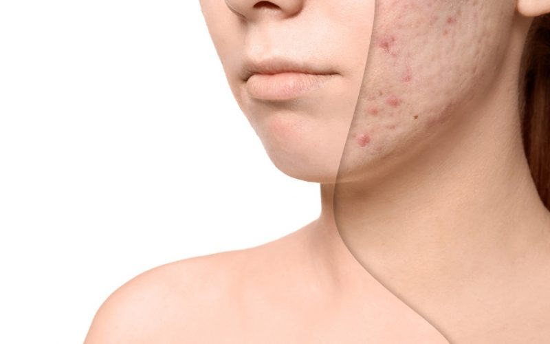 Acne Scars Laser Treatment – A Complete Guide