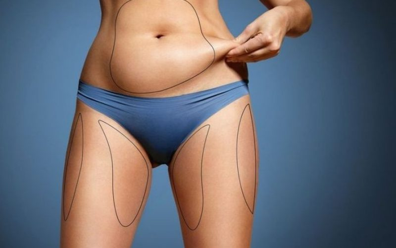 Top Information you need to know before Coolsculpting Procedures