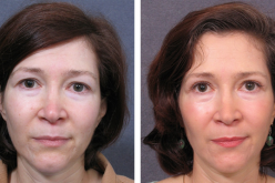 Different Cosmetic Surgeries That Will Enhance Your Beauty