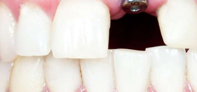 9 Most Common Causes Of Dental Implant Failure