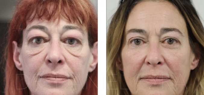 Lower Blepharoplasty, is it effective?