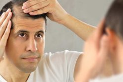 TOP 3 HAIR TRANSPLANT SURGEONS IN JAIPUR