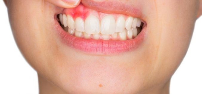 What Are The Signs Of Gum Disease?